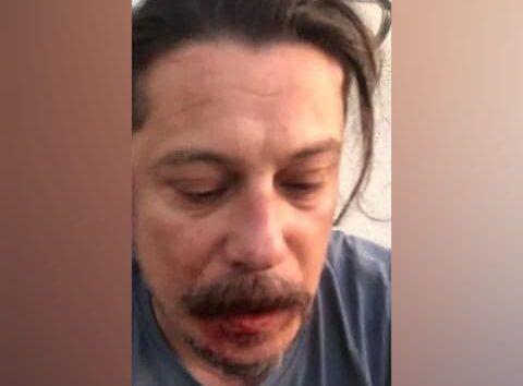 Nahaufnahme von Erk Acarer mit einer verletzung am Mund